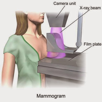 mamogra